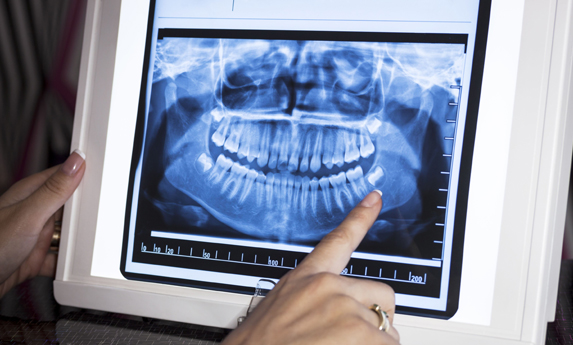 Why Are Dental X Rays Needed.jpg
