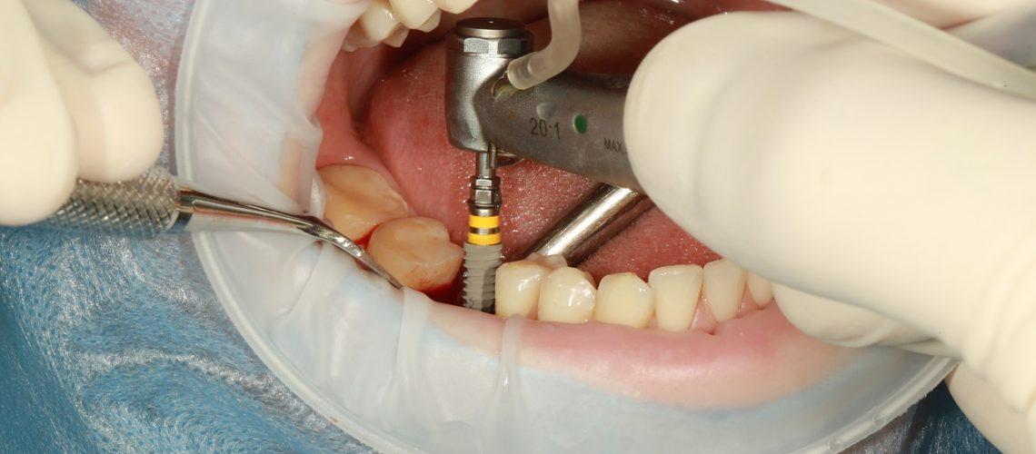 dental implant process
